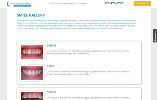 dental-implant2